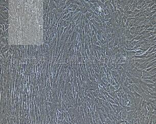 人胃成纤维细胞