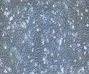 人结肠平滑肌细胞