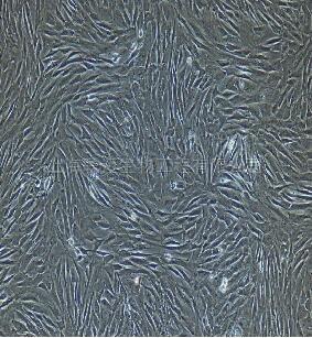 小鼠肺大动脉外膜成纤维细胞